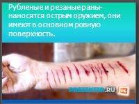 Раны, способы остановки кровотечений