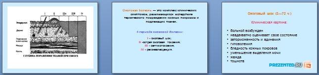 Слайды презентации: Термические повреждения, ожоги и отморожения