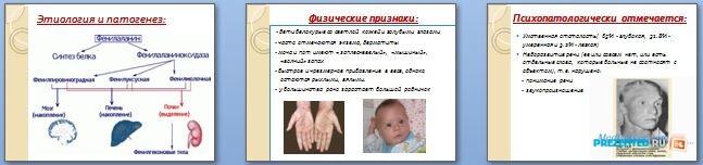 Слайды презентации: Фенилкетонурия