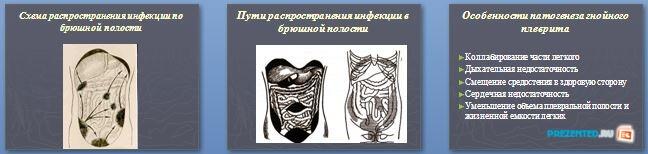 Слайды презентации: Гнойные заболевания серозных полостей