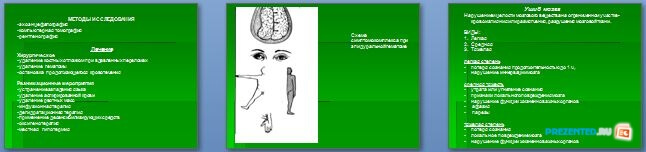 Слайды презентации: Закрытые повреждения головы и грудной клетки